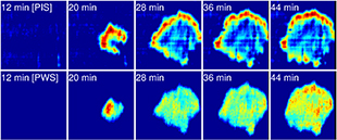 Photonic Resonator Outcoupler Microscopy (PROM) image that highlights focal adhesions of live dental stem cells.