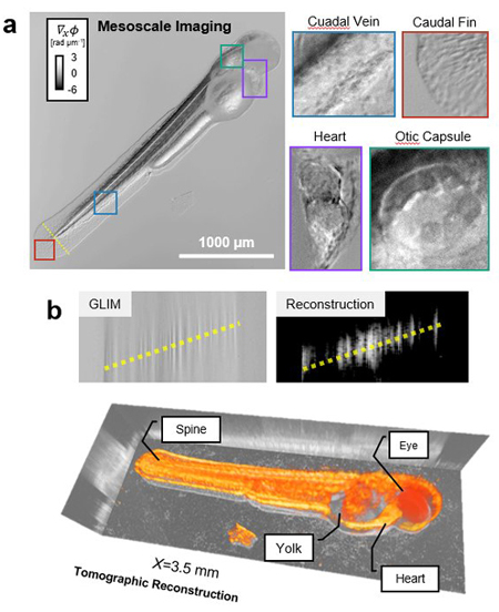 Images illustrating a new imaging technique called Epi-illumination Gradient Light Interference Microscopy.