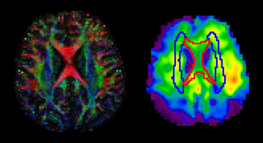 Brightly multicolored brain scans