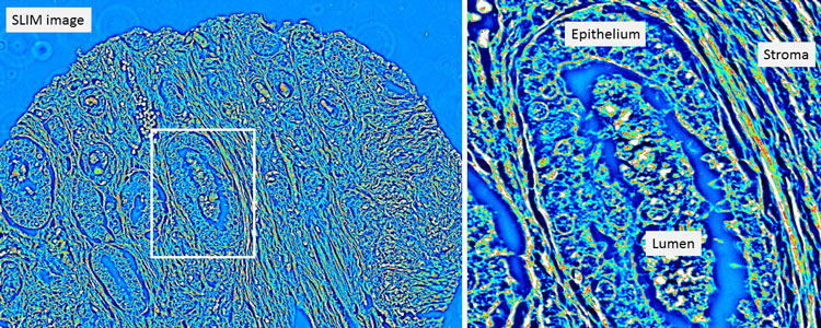 Left: Quantitative phase image of an unstained prostatectomy sample from a patient who had a biochemical recurrence of prostate cancer.  Right:  A zoomed-in region from the quantitative phase image showing a cancerous gland with debris in the lumen.  The stroma, or supportive tissue environment, shows discontinuities in the fiber length and disorganization in the orientation of the fibers.