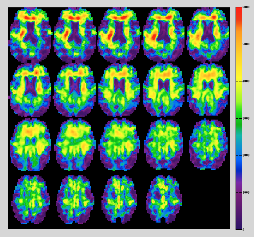 A series of brain images showing different colors through magnetic resonance elastography.