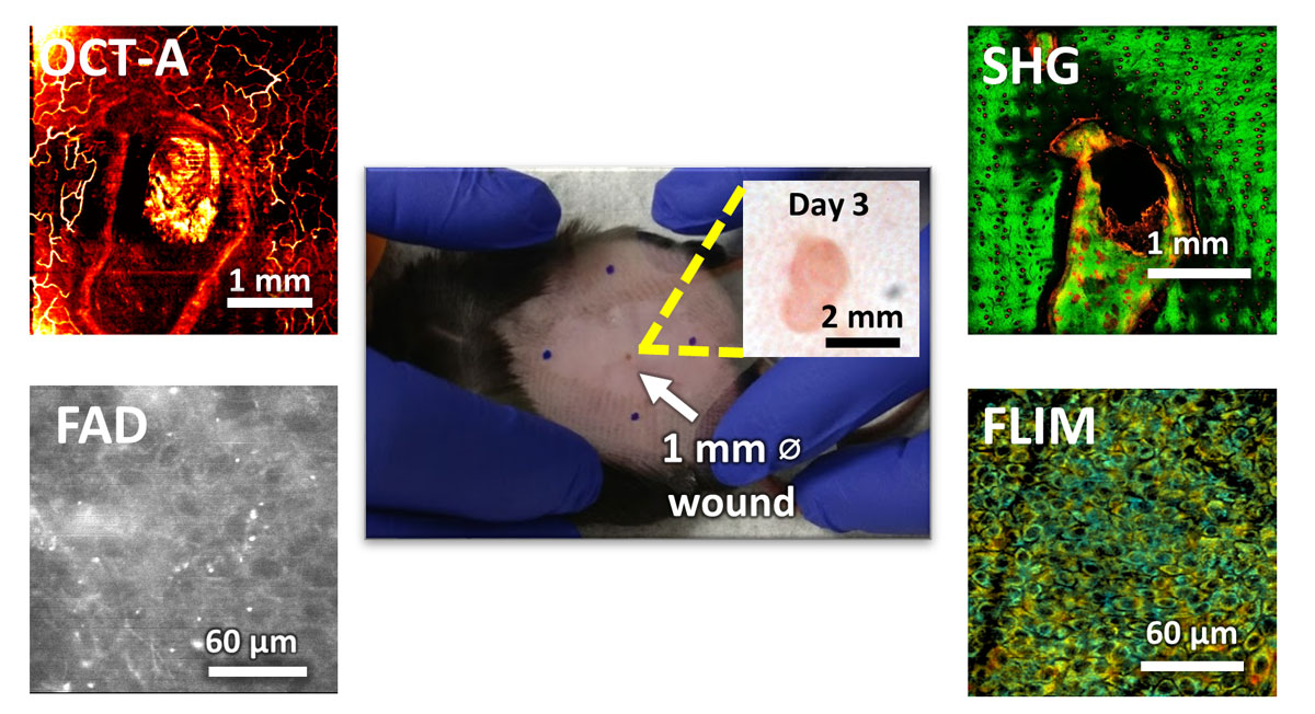 Different imaging techniques for wound healing. OCT-A shows the development of blood vessels, SHG shows collagen reorganization around the wound, FAD and FLIM images provide chemical information about the imaged area.