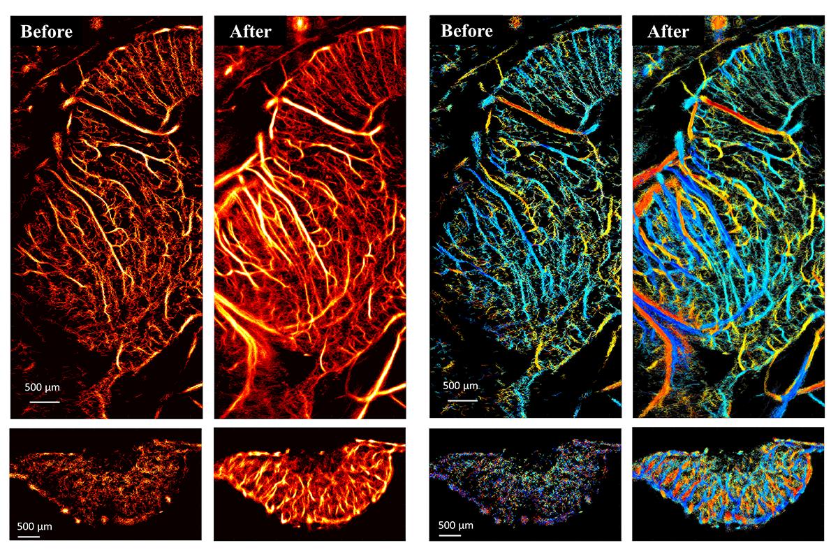 cancer center-ultrasound image-web
