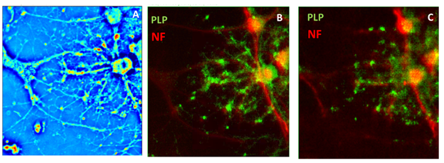 SLIM image of oligodendrocyte enveloping the axon of a neuron, the corresponding fluorescent channels, and the artificially generated fluorescence from the SLIM frame