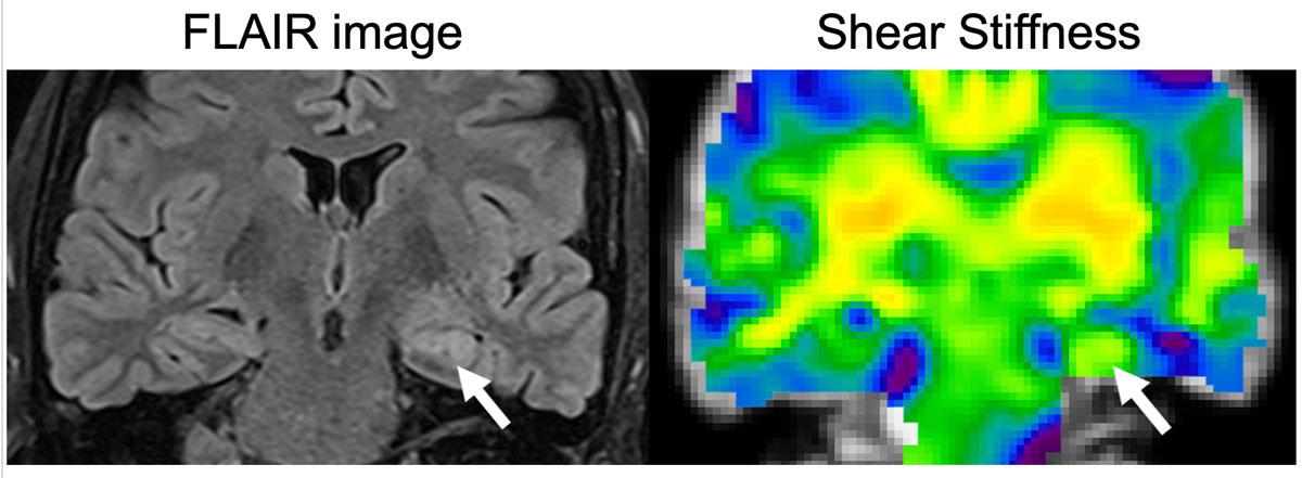 MRE of the brain FLAIR vs shear