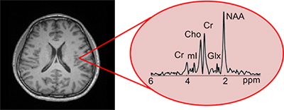 Shows data related to an MRI slice image of the brain.