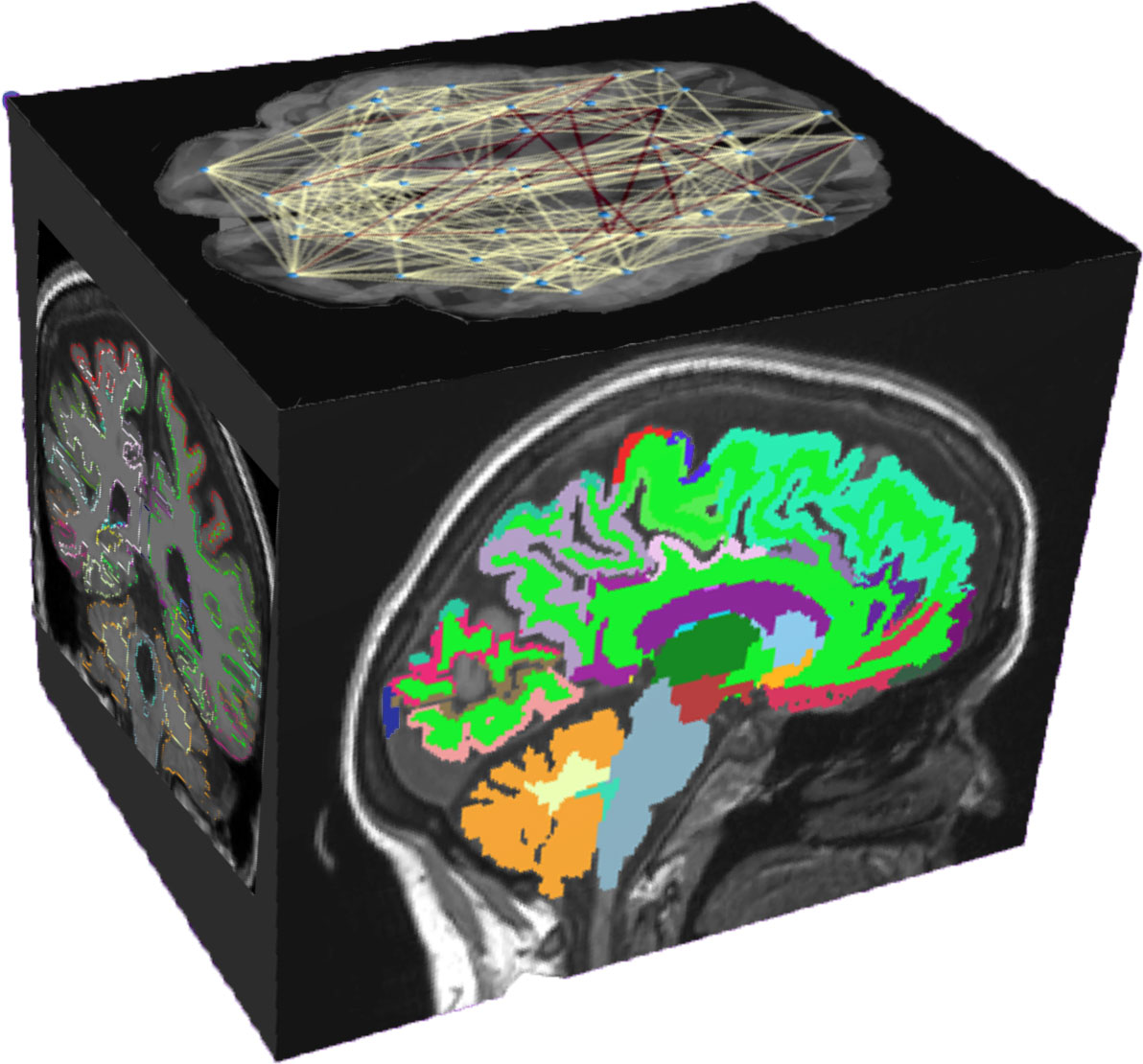 Cube facets with different brain images
